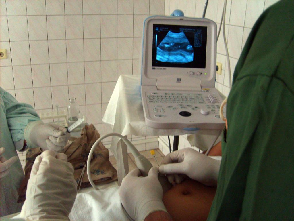 Инвазивная пренатальная диагностика беременных