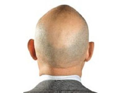 Сильное выпадение волос о чем говорит